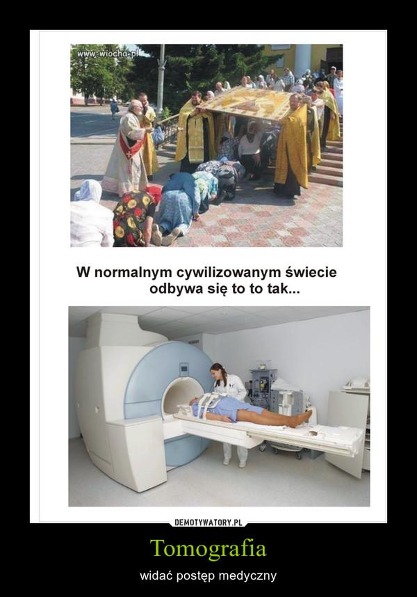 Tomografia – widać postęp medyczny