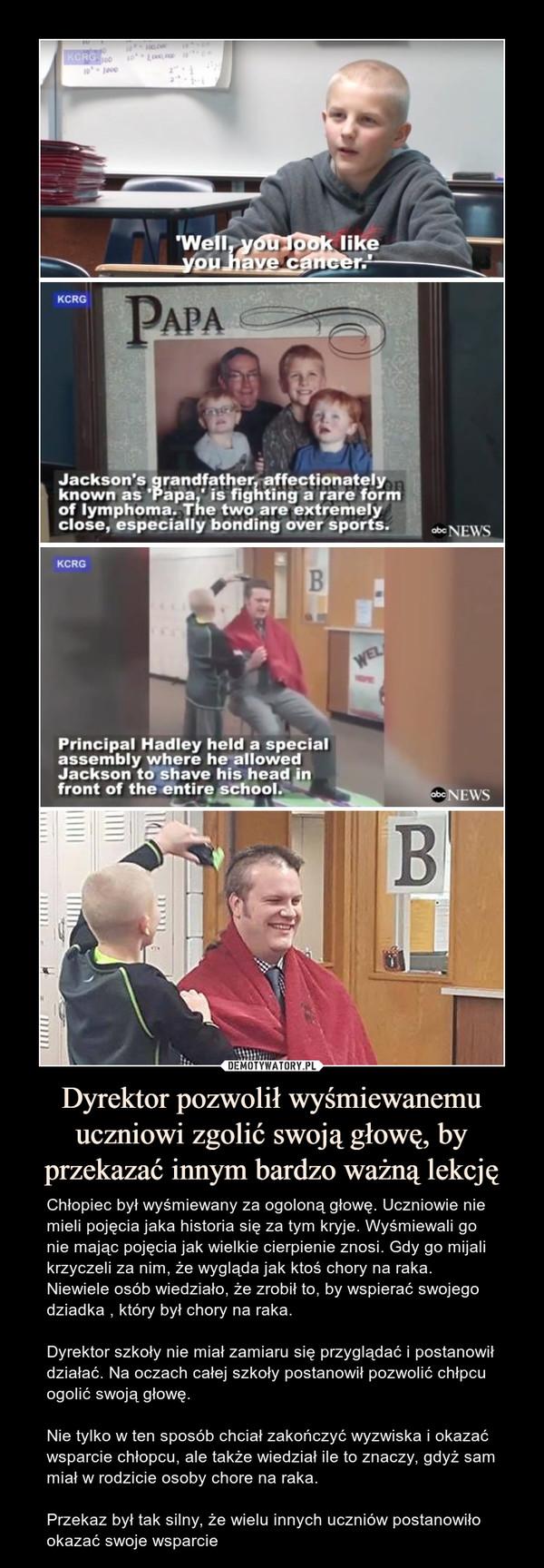 Dyrektor pozwolił wyśmiewanemu uczniowi zgolić swoją głowę, by przekazać innym bardzo ważną lekcję – Chłopiec był wyśmiewany za ogoloną głowę. Uczniowie nie mieli pojęcia jaka historia się za tym kryje. Wyśmiewali go nie mając pojęcia jak wielkie cierpienie znosi. Gdy go mijali krzyczeli za nim, że wygląda jak ktoś chory na raka. Niewiele osób wiedziało, że zrobił to, by wspierać swojego dziadka , który był chory na raka.Dyrektor szkoły nie miał zamiaru się przyglądać i postanowił działać. Na oczach całej szkoły postanowił pozwolić chłpcu ogolić swoją głowę.Nie tylko w ten sposób chciał zakończyć wyzwiska i okazać wsparcie chłopcu, ale także wiedział ile to znaczy, gdyż sam miał w rodzicie osoby chore na raka. Przekaz był tak silny, że wielu innych uczniów postanowiło okazać swoje wsparcie