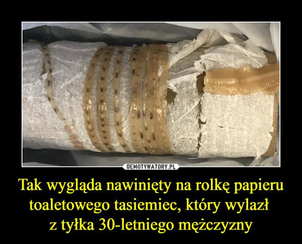 Tak wygląda nawinięty na rolkę papieru toaletowego tasiemiec, który wylazł z tyłka 30-letniego mężczyzny –