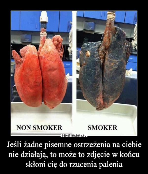 Jeśli żadne pisemne ostrzeżenia na ciebie nie działają, to może to zdjęcie w końcu skłoni cię do rzucenia palenia –