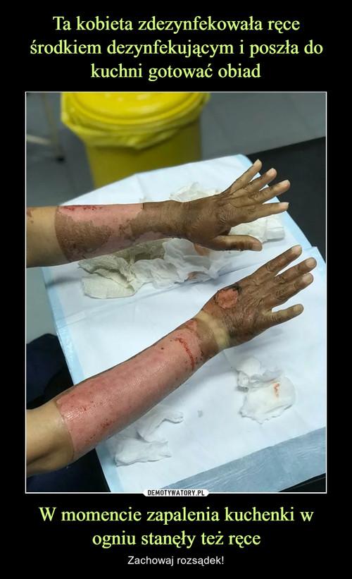 Ta kobieta zdezynfekowała ręce środkiem dezynfekującym i poszła do kuchni gotować obiad W momencie zapalenia kuchenki w ogniu stanęły też ręce