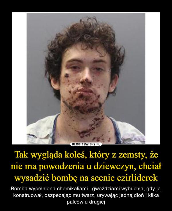 Tak wygląda koleś, który z zemsty, że nie ma powodzenia u dziewczyn, chciał wysadzić bombę na scenie czirliderek – Bomba wypełniona chemikaliami i gwoździami wybuchła, gdy ją konstruował, oszpecając mu twarz, urywając jedną dłoń i kilka palców u drugiej