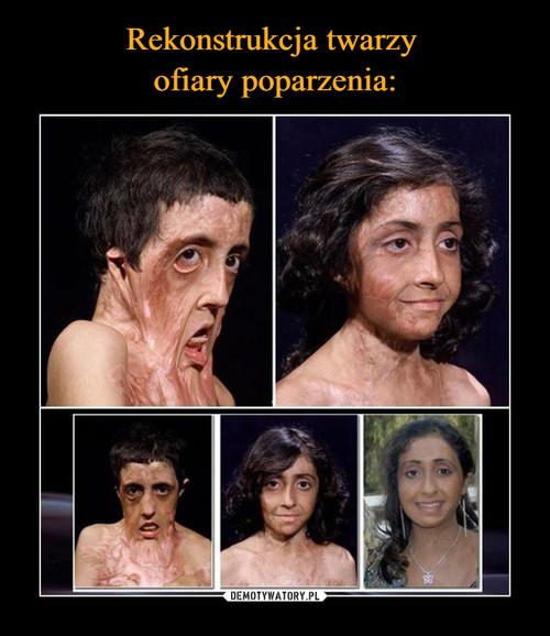 Rekonstrukcja twarzy  ofiary poparzenia: